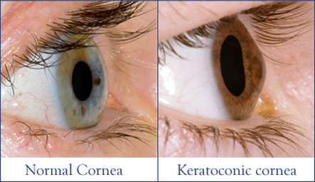 Normal cornea vs Keratoconic cornea