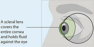 Kirkwood Eye Associates specializes in Scleral Contact Lenses